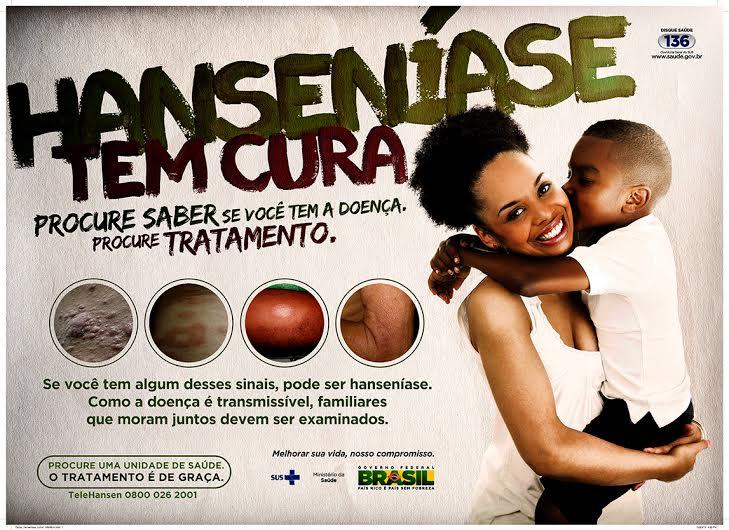 Eusébio inicia campanha contra hanseníase
